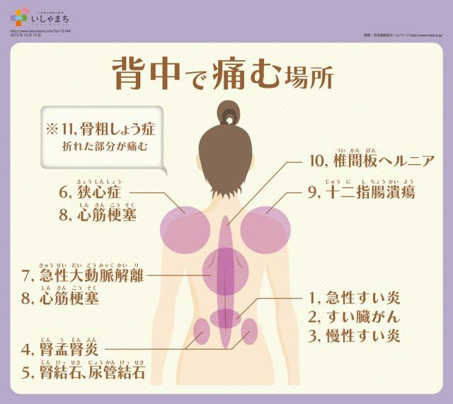 背中が痛む場所別・原因となる病気