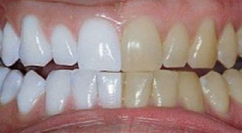 Ele misturou 2 ingredientes e passou nos dentes. O resultado: dentes brancos como nunca! | Cura pela Natureza