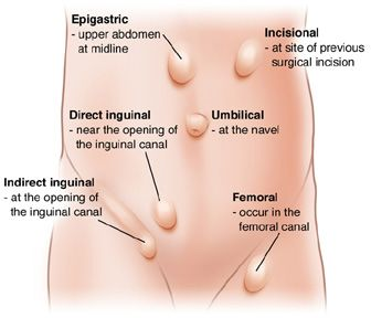 different types of hernias - Google Search