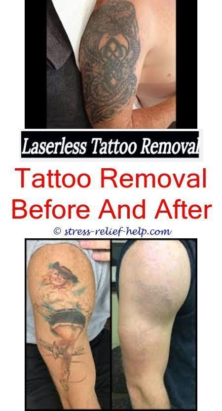 e5d0e6789 tattoo removal cream reviews excision tattoo removal cost - can you remove  a scarred tattoo. Read it
