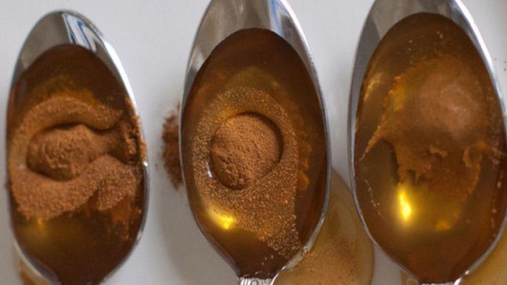 医師が驚嘆!!ほとんどの病気に効果がある組み合わせとは?|国際医療 Specialist Moe!⑫吹き出物 蜂蜜大3+シナモンパウダー小1のペーストを作り、寝る前に吹き出物のある個所に塗布し、起床時に温かいお湯で洗い流す。  ⑬ダイエット・脂肪燃焼・むくみ 蜂蜜とシナモンの相乗効果は、基礎代謝を高め、血糖値を調節します。脂肪燃焼効果やむくみの緩和をしてくれます。  朝食の30分前と寝る前に、蜂蜜大1+シナモン小1+熱湯1カップを飲む。  ⑭癌 蜂蜜大1+シナモン小1を一日に3回、1か月以上摂取。 オーストラリアの研究では、胃と骨の進行した癌が完治しました。   ⑮疲労 蜂蜜大0.5+シナモン少量+水1杯を午後3時に摂取する。ミルトン博士の研究では、1週間続ける事で、活力が増加するという事です。  ⑯難聴 蜂蜜大1+シナモン小0.5を摂取する