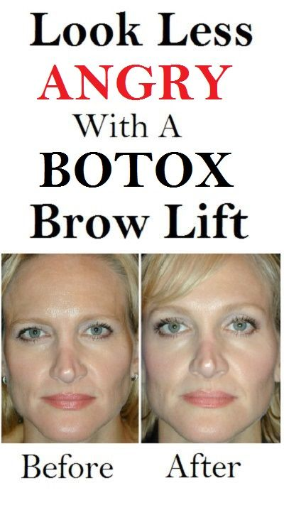 The Botox Brow Lift is a nonsurgical alternative to help you look 10 years younger, more refreshed, and rejuvenated.