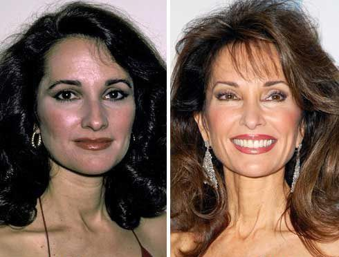 Susan Lucci Plastic Surgery Before & After - http://plasticsurgerytalks.com/susan-lucci-plastic-surgery/