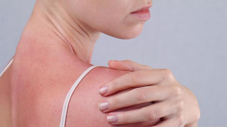 Reverse signs of sun damage on hair, skin , http://bostondesiconnection.com/reverse-signs-sun-damage-hair-skin/,  #Reversesignsofsundamageonhair #skin