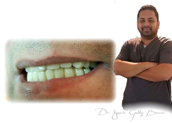 """Caso Clínico  Rejuvenecimiento Dental   Whattssap : + 56 9 84091674  Urgencias : 77495131  """"La sonrisa es la magia que ilumina el rostro"""""""