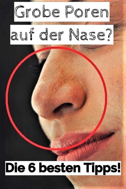 Nie wieder grobe Poren auf der Nase!