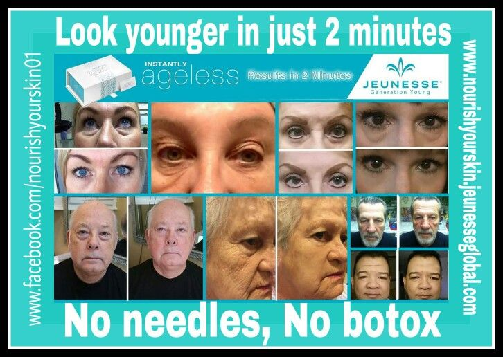 No needles and No botox Look younger in just 2 minutes Instantly Ageless www.nourishyourskin.jeunesseglobal.com