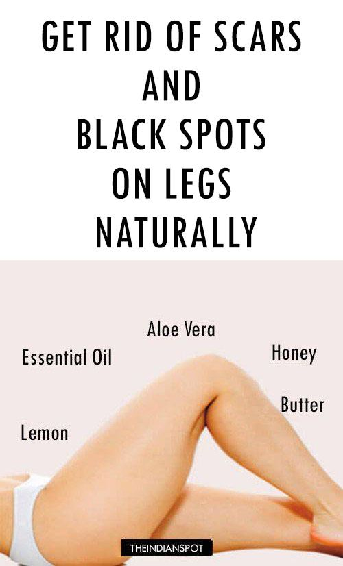 Makeup to cover dark spots on legs makeup vidalondon get rid of scars and black spots on legs naturally how ccuart Gallery