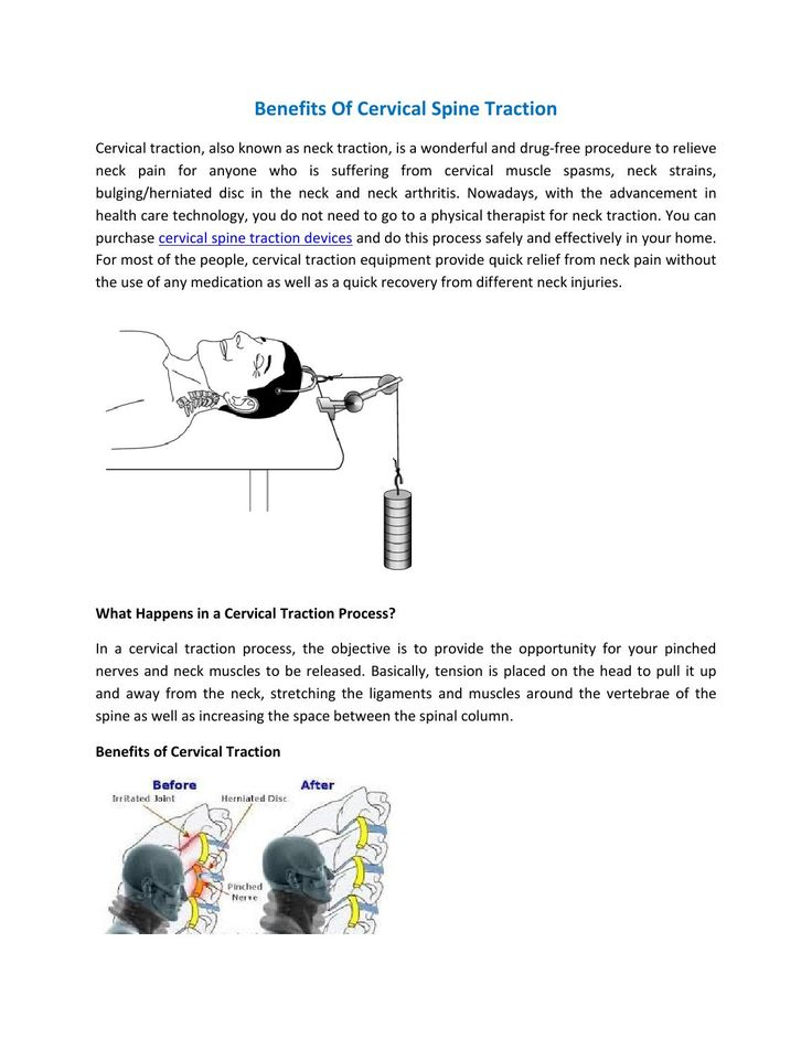 Benefits Of #Cervical #Spine #Traction