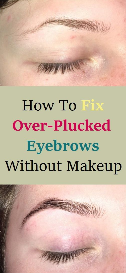 How To Fix Over Plucked Eyebrows Without Makeup | Fix ...