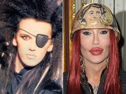 Dead or Alive singer Pete Burns has died aged 57 after suffering a cardiac arrest, Pete Burns Before and After Plastic Surgery 2016
