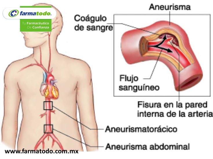 ¿Cuáles son los síntomas de Aneurisma? Dependen de la localización y de el o los vasos afectados. El aórtico abdominal puede desarrollarse lentamente siendo asintomático, al romperse produce dolor intenso en abdomen y espalda pudiendo irradiarse a la ingle y piernas, frecuencia cardiaca rápida, nauseas, vómito y shock. En el cerebral, dolores de cabeza severos, visión doble o perdida de esta, dolor y/o rigidez del cuello. El aórtico torácico presenta dolor de tórax o espalda.