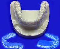 The Importance of Wearing Retainers after Removing Braces #buy clear retainers online