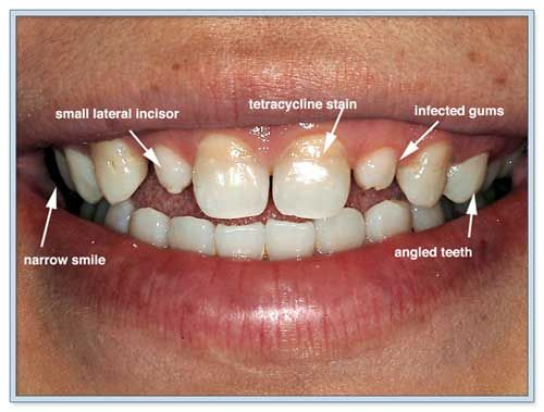Tetracycline Stained Teeth Causes