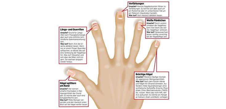 Was Fingernägel verraten können -1