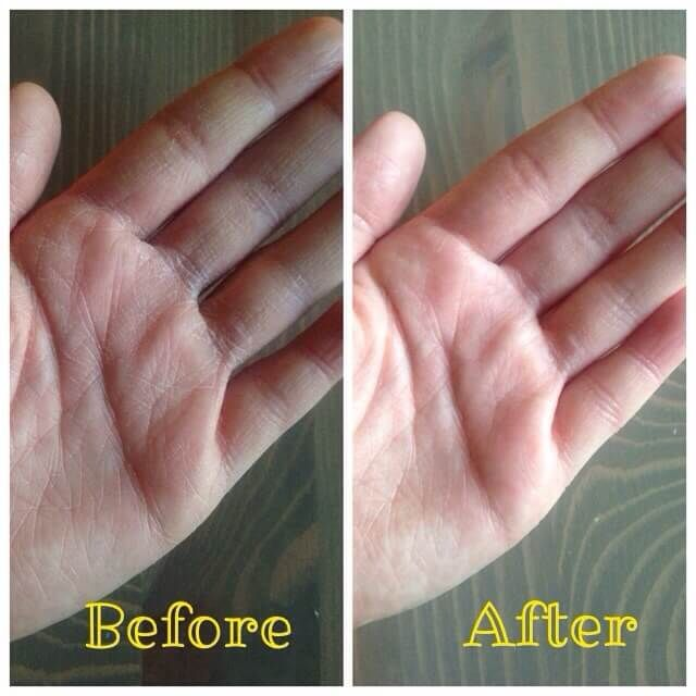 DIY Hand Cream for Extra Dry Hands | Stuff to buy | Dry