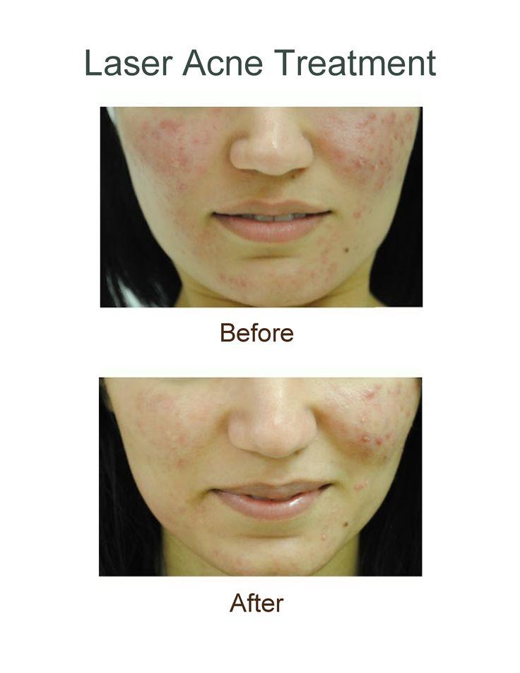 laserbehandling mot acne