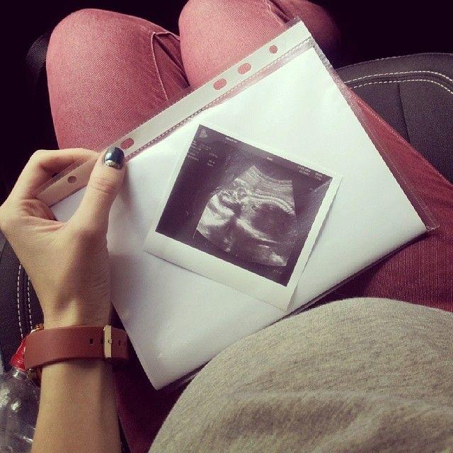 Instagram media by _ka_trina_ - Самое трогательное фото в моей жизни... Это было моё первое УЗИ за эту беременность. Я не узнаю себя: разрыдалась взахлёб, когда мне включили послушать сердцебиение! .. Кто там-пока не видно, но самое главное, что мы здоровы и развиваемся прекрасно! Сегодня я люблю весь мир! ♥