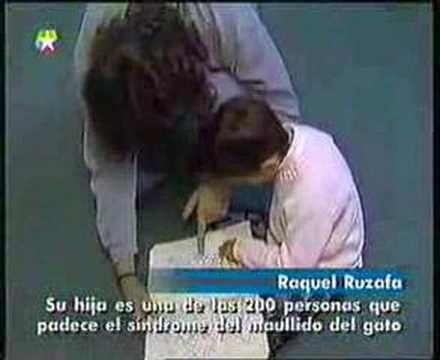 Síndrome Maullido de Gato-Rocio y Barbara - YouTube