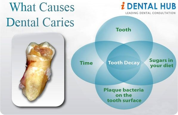 Dental Caries is a multifactorial disease. Various factors responsible for the carious process are.