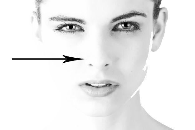 Cirurgia no nariz faz respirar melhor | Vanessa Londe - Cirurgia Plástica