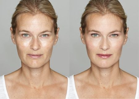 The Ultimate Guide to the Best Anti-Aging Wrinkle Treatments