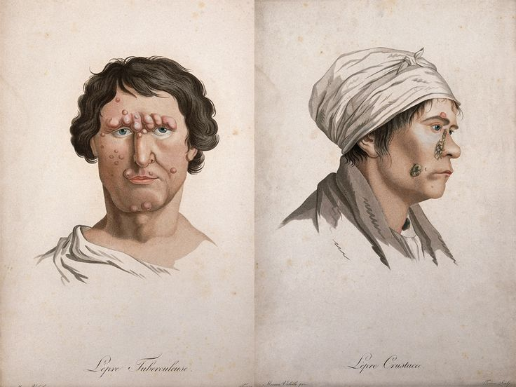 Awesomely Gross Medical Illustrations From the 19th Century   One of the challenges for 19th century physicians was distinguishing leprosy from other conditions—particularly the various forms of tuberculosis. The man on the left is labeled  'tubercular leprosy.'  The woman on the right has a skin disease labelled 'crusting leprosy', but she more likely has a form of ichthyosis, a genetic skin disorder.  D.A.P.    WIRED.com