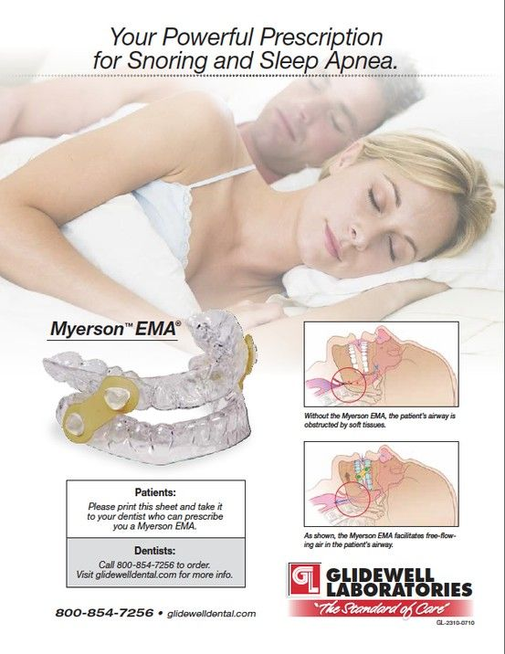 12 Best Images About Anti Snore Devices On Pinterest