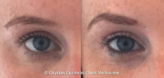 How to arch the brow with anti-wrinkle injections. Cityskin Melbourne. https://cityskin.com.au/anti-wrinkle/brow-shaping-anti-wrinkle-injections-melbourne/
