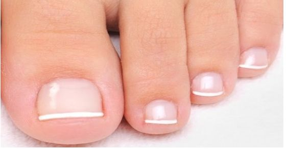 This is How To Beat Toenail Fungus Naturally - use apple cider vinegar and hydrogen peroxide.