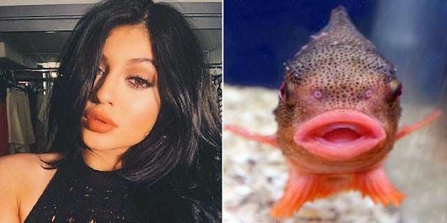 """Entertainment Web: Kylie Jenner's Lip Challenge Is Giving Girls """"Fish Lips"""" (14 pics)"""