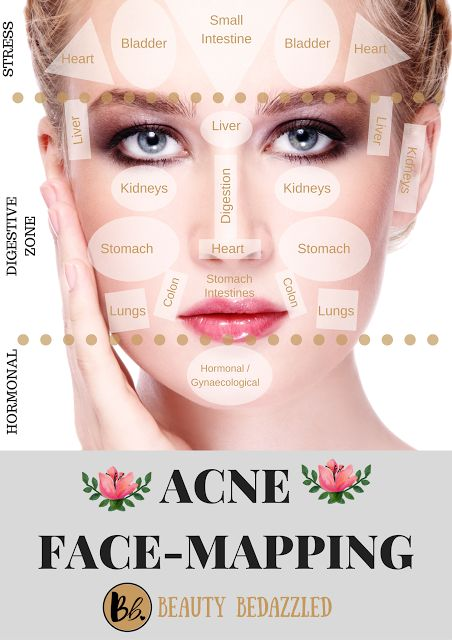 Acne Face Mapping What Does Your Acne Tell You