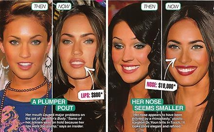 Megan Fox Plastic Surgery Before After If you are considering a DDS click on the image to learn more.