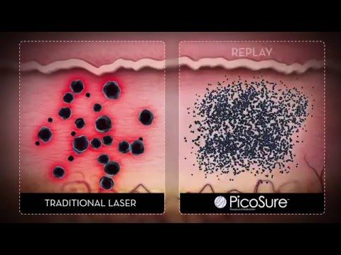 If you are searching for a site to find top information on picosecond laser tattoo removal, browse the previously mentioned website. It's also possible to find  useful tips on picosure laser removal with the help of this site. This site is appreciated by many people.