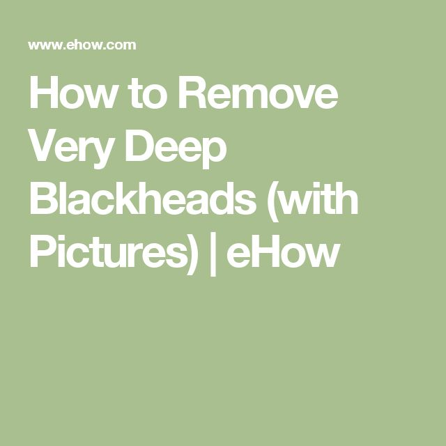 How to Remove Very Deep Blackheads (with Pictures) | eHow