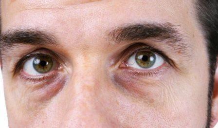 Best dark eye circle remover cream & many other home methods for under eye darkness.