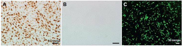 Figure 2 The expression of aldose reductase in COS-7 cells transfected with (A) the plasmid of pHAR and (B) empty vector by immunohistochemistry.