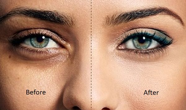 Hilangkan Lingkaran Di Bawah Mata Dengan Minyak Atsiri Lingkaran Gelap Minyak Kesehatan