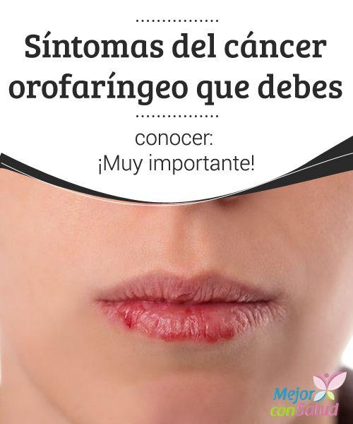 Síntomas del cáncer orofaríngeo que debes conocer: ¡Muy importante!  El cáncer orofaríngeo no se asocia solo al hábito del tabaco. Descubre los síntomas de esta enfermedad localizada en la boca, lengua, paladar y faringe.