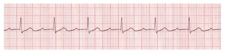 Heart Block: First-Degree. Delayed AV node conduction. PR interval > 0.2 seconds. No specific rx.