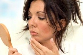 5 Workable tips for Removing #Zits