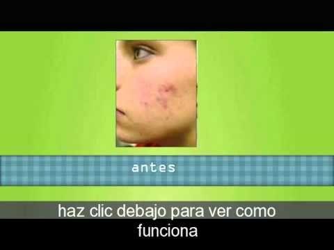 es buena la sabila para el acne - http://solucionparaelacne.org/blog/es-buena-la-sabila-para-el-acne/