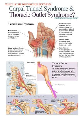 What is the difference between Carpal Tunnel Syndrome and Thoracic Outlet Syndrome? ..... kur <3