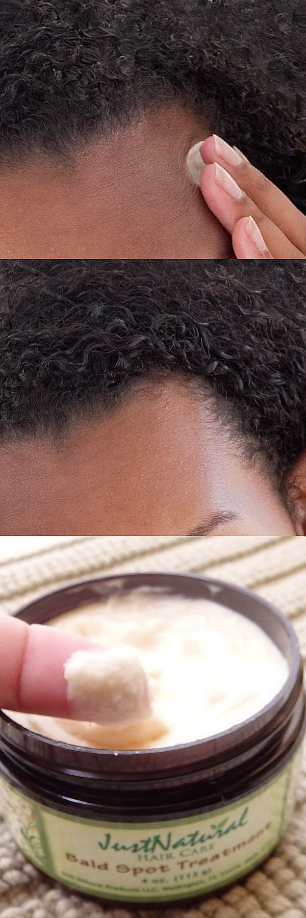 I am African American and have very thick, coarse hair that tends to be very dry. I started with a couple of small spots. I have been using the cream for 3 months and honestly the spots are almost gone. I also using the shampoo for hair loss.