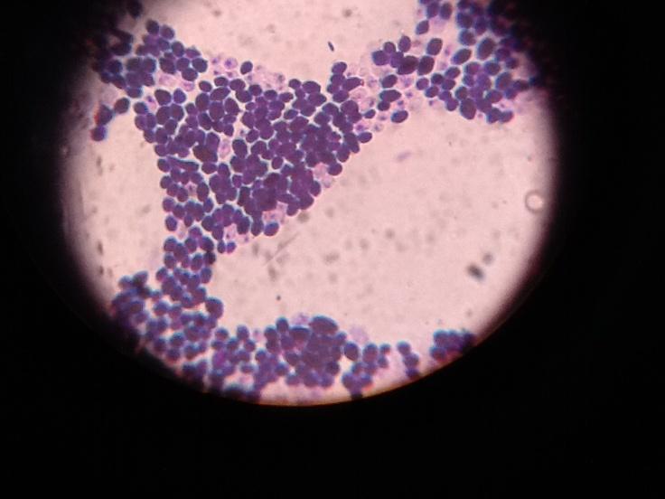 Eucariontes (Leveduras) microscópio óptico ampliação 1000x
