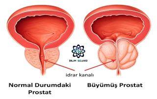 Bilim Seansı: Prostat Kanseri Nedir?