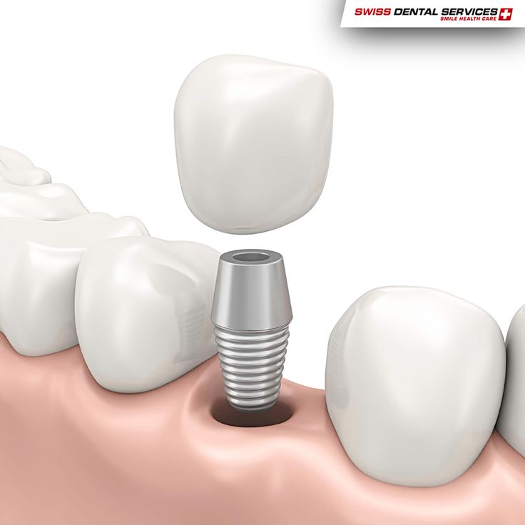 If you're only missing 1 tooth you only need 1 dental implant. www.swissdentalservices.com/en