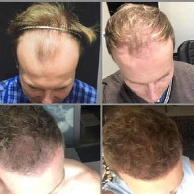 This pic speaks for itself! @mbrown_beauty has had a new lease on life after his #hairtransplant! Read about it on our #blog or @rescu.com.au #hair #menshair #style #grooming #aesthetic #hairstyle #haircut #transplant #hairstyles #hairtransformation #hairtransplantation