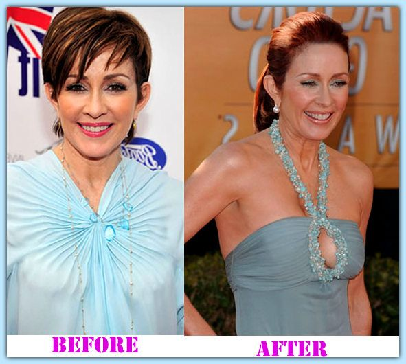 Patricia Heaton plastic surgery before and after Patricia Heaton Plastic Surgery  #PatriciaHeatonplasticsurgery #PatriciaHeaton #houshow