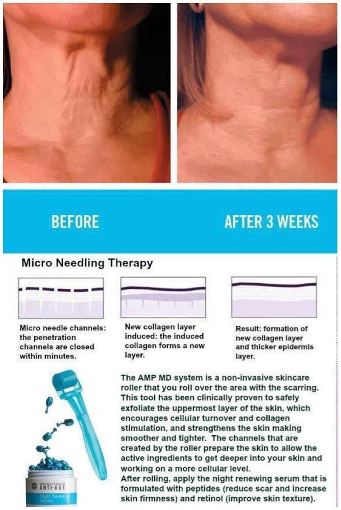 Here's the goods on Micro Needling: The micro-needles break the epidermal of the skin and causes micro-trauma and micro-inflammation.Damage to the body simulates the release of growth factors that trigger the production of collagen and elastin. Wrinkles, lines, pore size, acne scars, stretch marks or depressed scars remold without the use of anything artificial. https://awesomejessieg.myrandf.com/Shop/Product/AAAPS01 #awesomejessiegbeauty